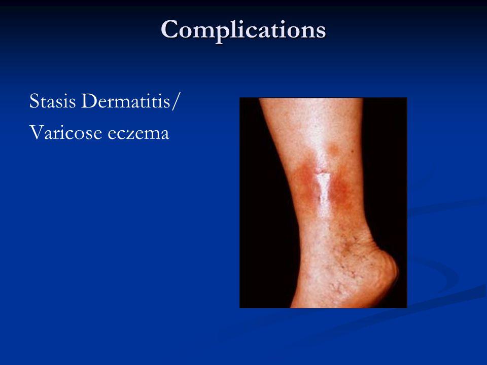 Complications Stasis Dermatitis/ Varicose eczema
