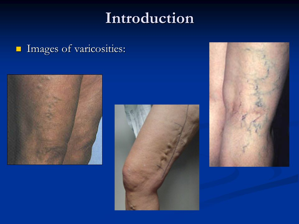 Introduction Telangiectasia, more commonly known as spider veins: Telangiectasia, more commonly known as spider veins: Spider veins on the leg usually appear in one of three patterns: (a)simple linear (b)arborizing, which appear branch-like (c)spider, which appear as a cartwheel shape with a dark center point.