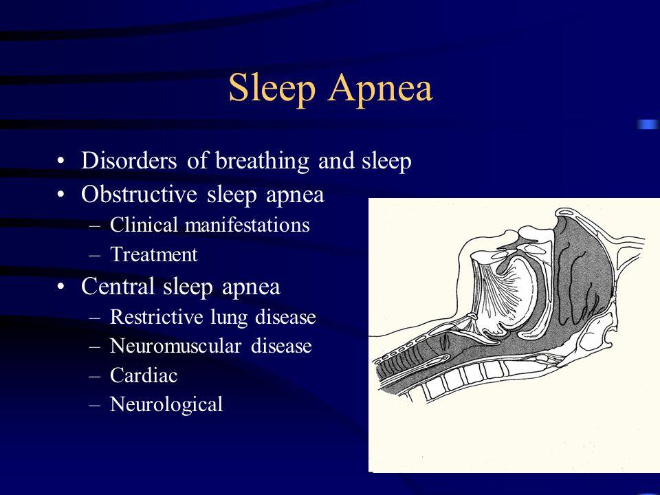 Other sleep disorders Narcolepsy –Genetic Aspects of narcolepsy –DR2, DR2 DQw1 Dw2 = DR 2 –Diagnosis Cataplexy (pathognomonic) –Treatment of narcolepsy Stimulants, REM suppressants, Behavioral adjustments child.MOV