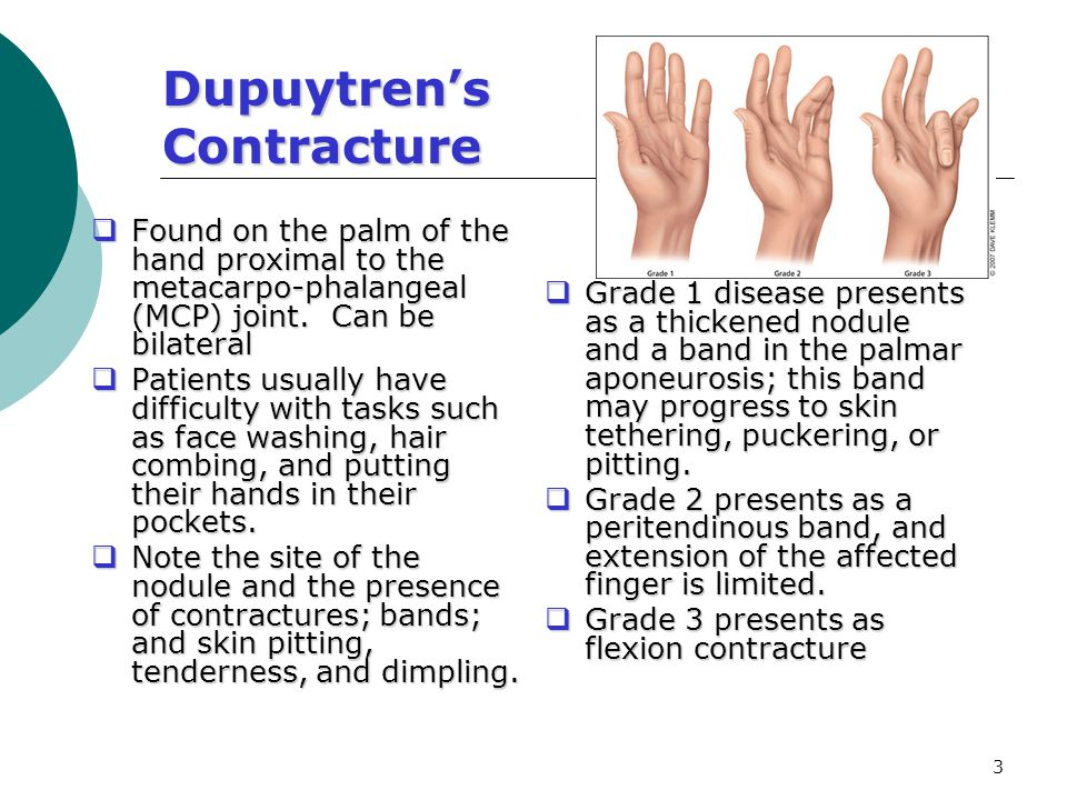 3 Dupuytren's Contracture  Found on the palm of the hand proximal to the metacarpo-phalangeal (MCP) joint. Can be bilateral  Patients usually have d