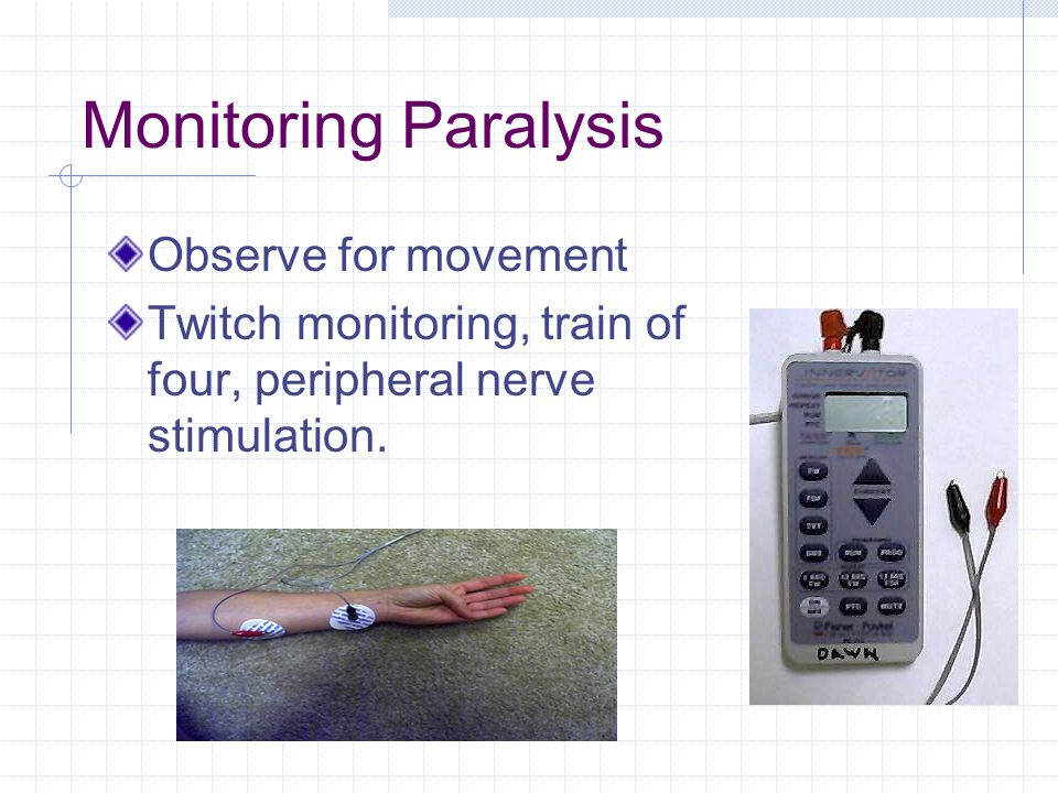 Monitoring Paralysis Observe for movement Twitch monitoring, train of four, peripheral nerve stimulation.