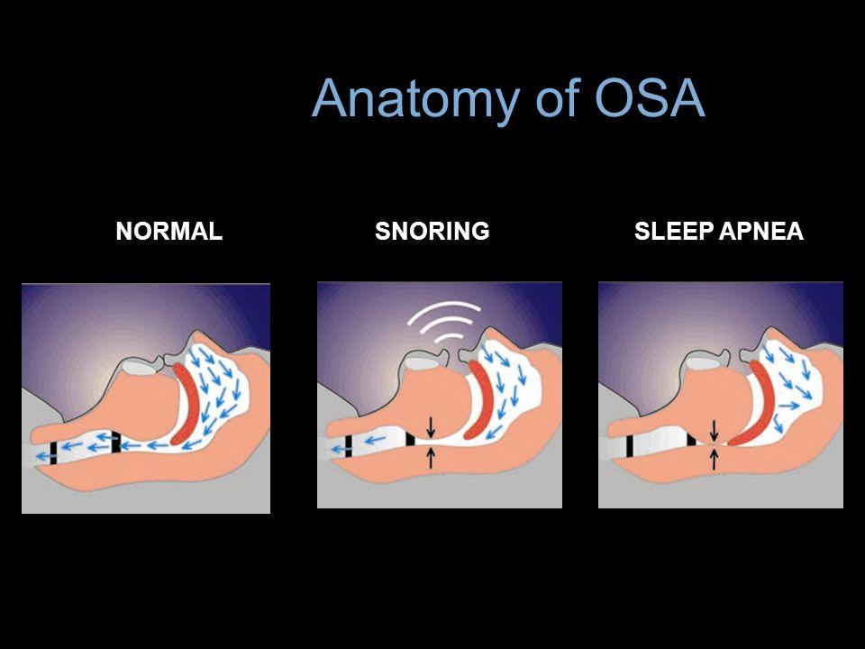 NORMALSNORINGSLEEP APNEA Anatomy of OSA