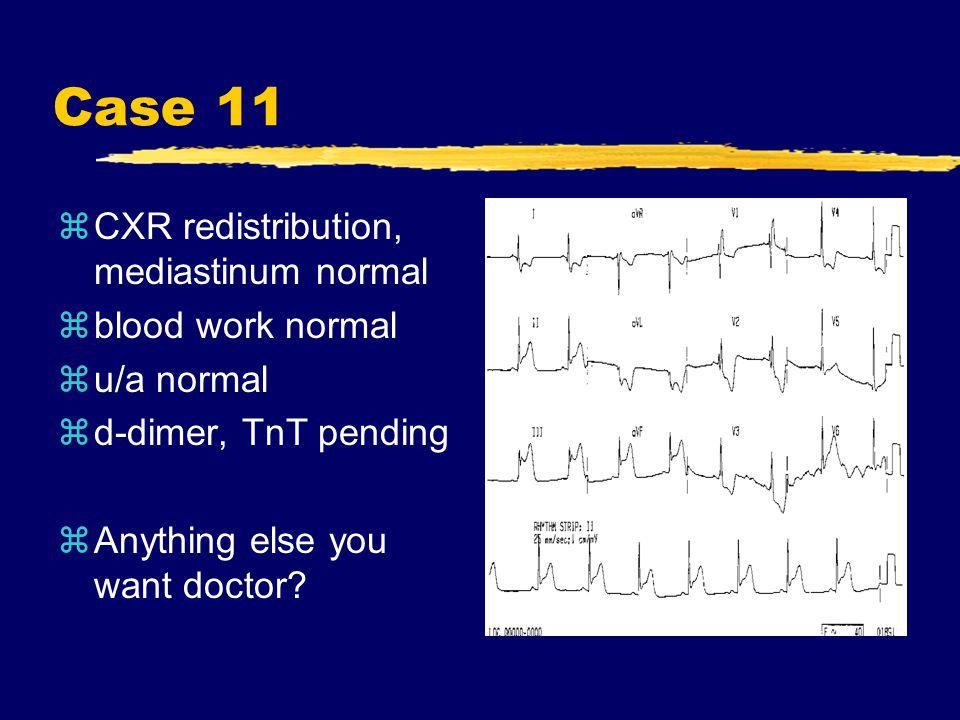 Case 11 zCXR redistribution, mediastinum normal zblood work normal zu/a normal zd-dimer, TnT pending zAnything else you want doctor?