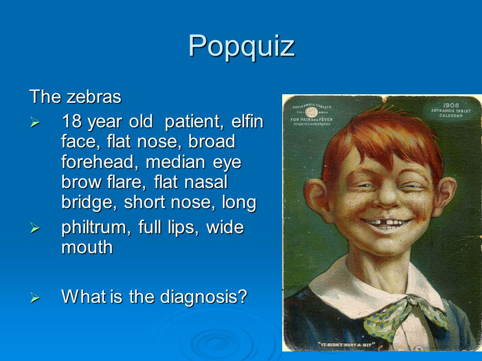 Popquiz The zebras  18 year old patient, elfin face, flat nose, broad forehead, median eye brow flare, flat nasal bridge, short nose, long  philtrum, full lips, wide mouth  What is the diagnosis?