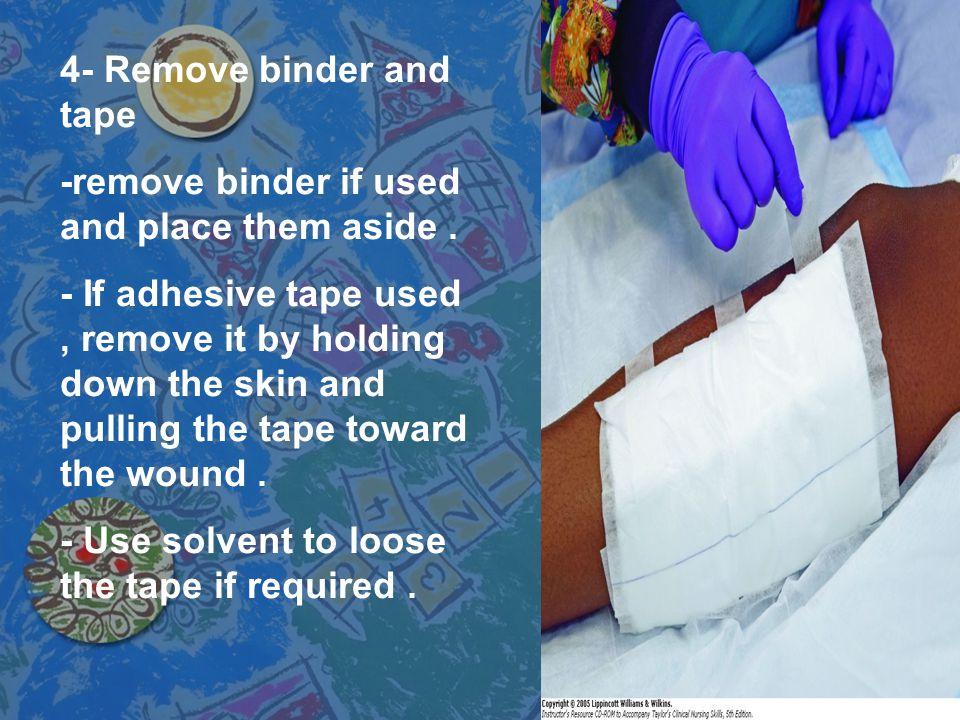 4- Remove binder and tape -remove binder if used and place them aside. - If adhesive tape used, remove it by holding down the skin and pulling the tap