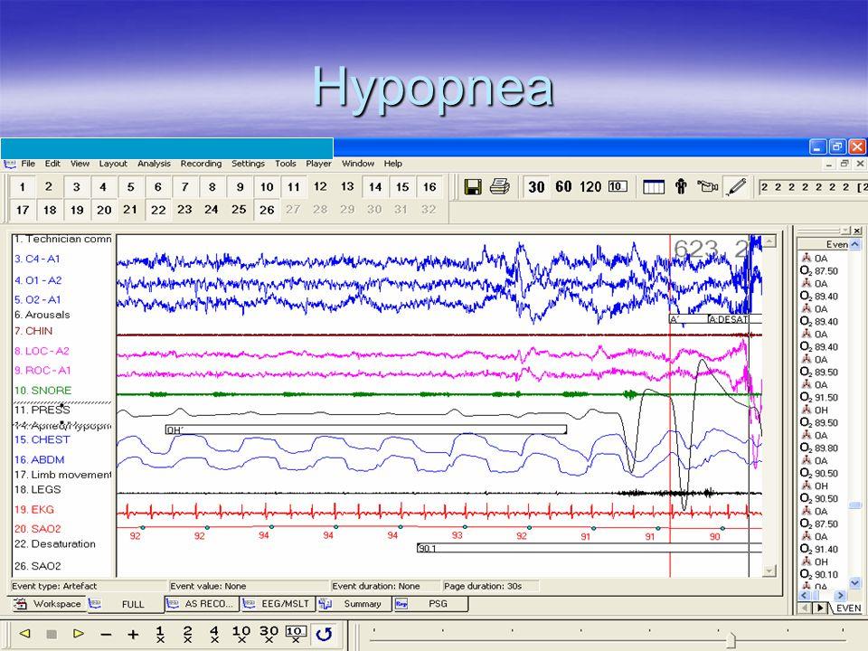 Hypopnea