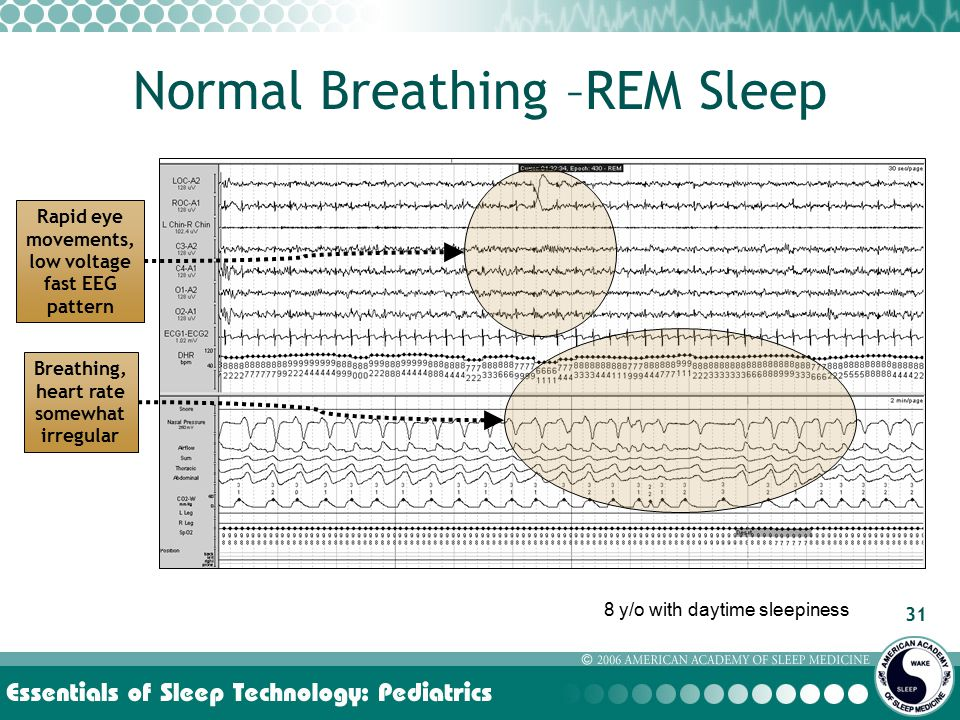 31 Normal Breathing –REM Sleep Rapid eye movements, low voltage fast EEG pattern Breathing, heart rate somewhat irregular 8 y/o with daytime sleepiness