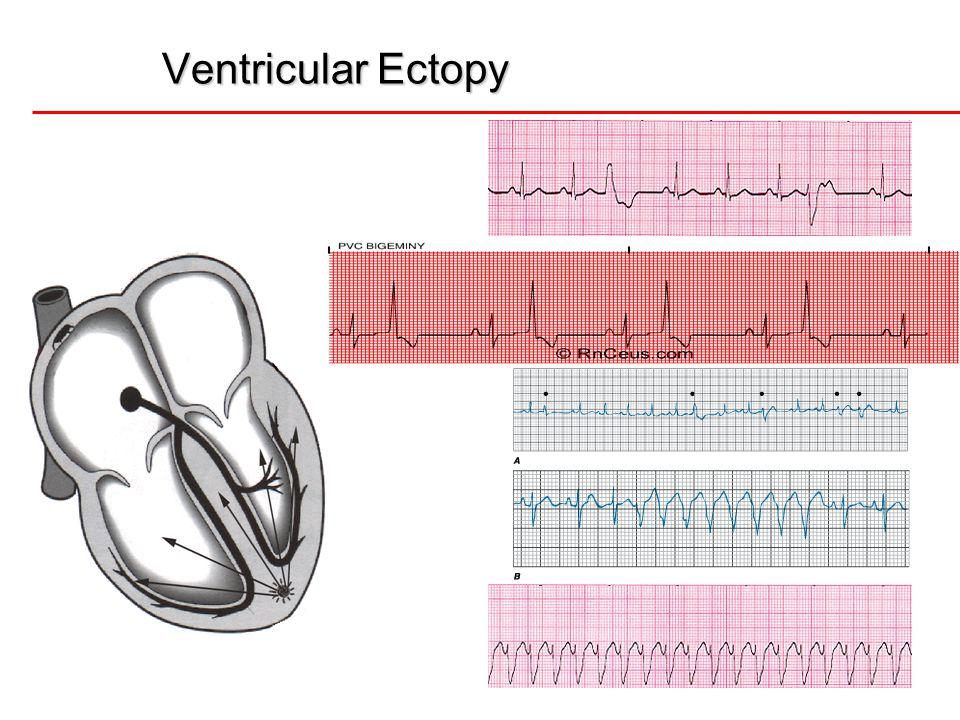 11 Areas of Damage  Inferior  Right Coronary Artery  Leads II, III, AVF  Anterior  Left Anterior Descending  Leads V1-V4  Lateral  Circumflex  Leads I, AVL, V5, V6
