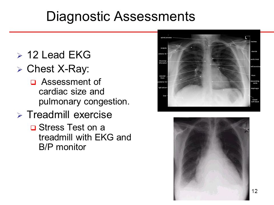 12 Diagnostic Assessments  12 Lead EKG  Chest X-Ray:  Assessment of cardiac size and pulmonary congestion.  Treadmill exercise  Stress Test on a