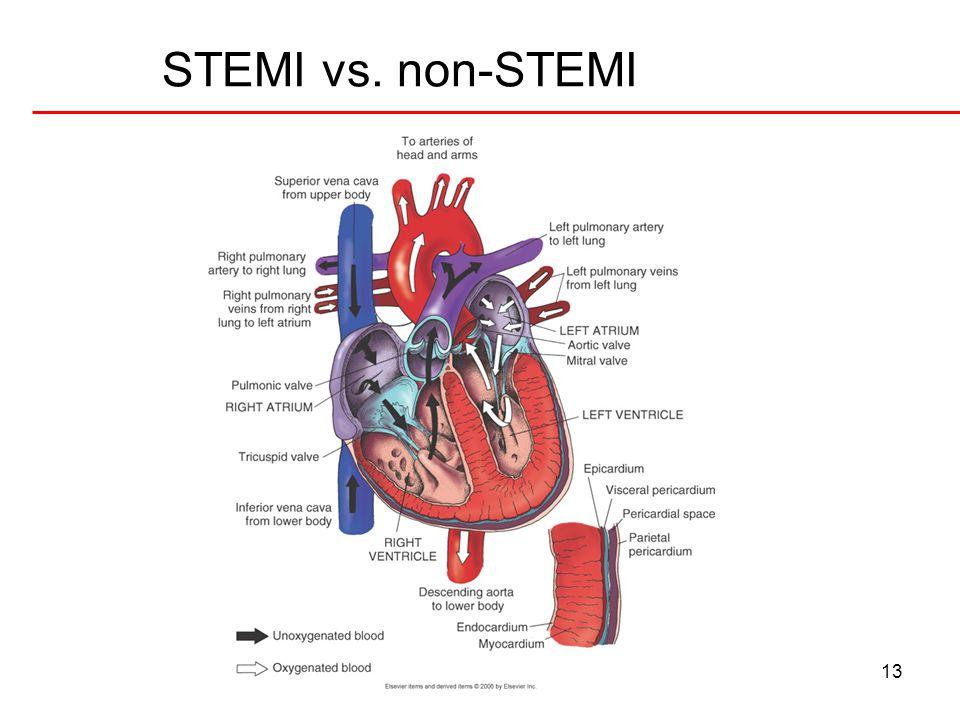 14 STEMI 12 Lead EKG