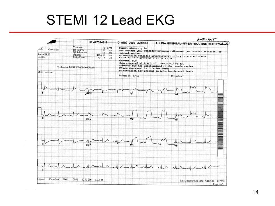 15 nonSTEMI 12 Lead EKG