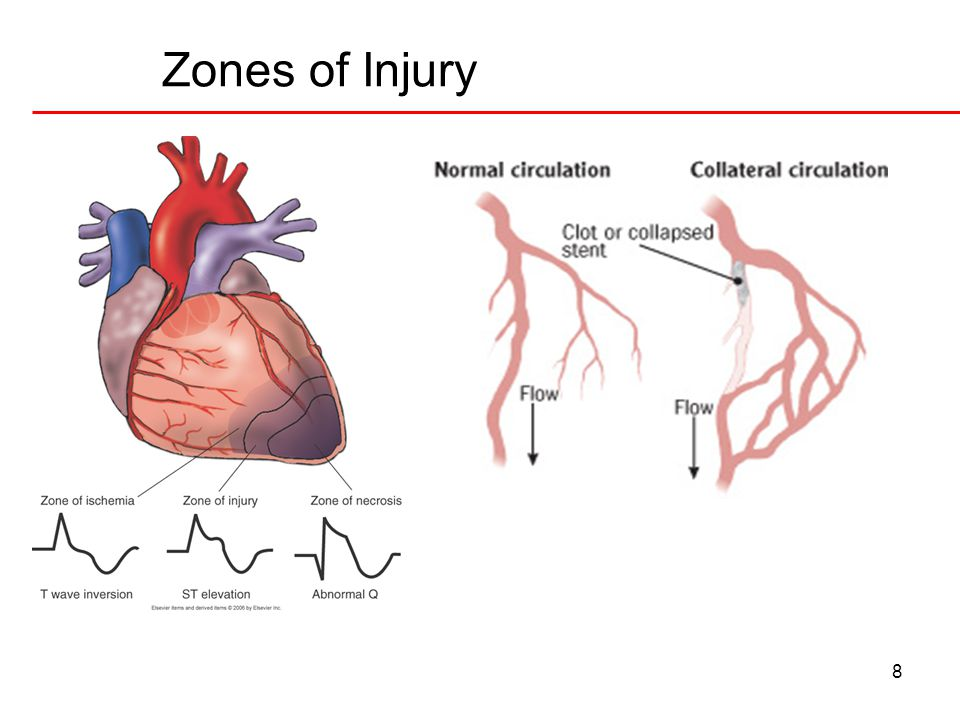 8 Zones of Injury