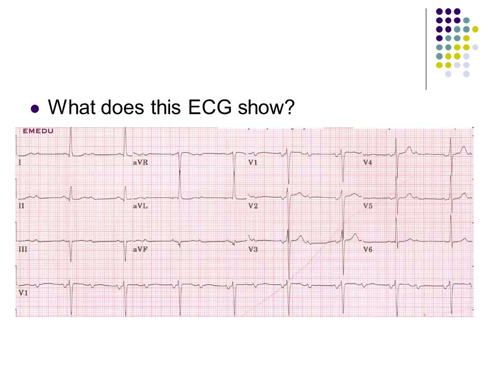 What does this ECG show?