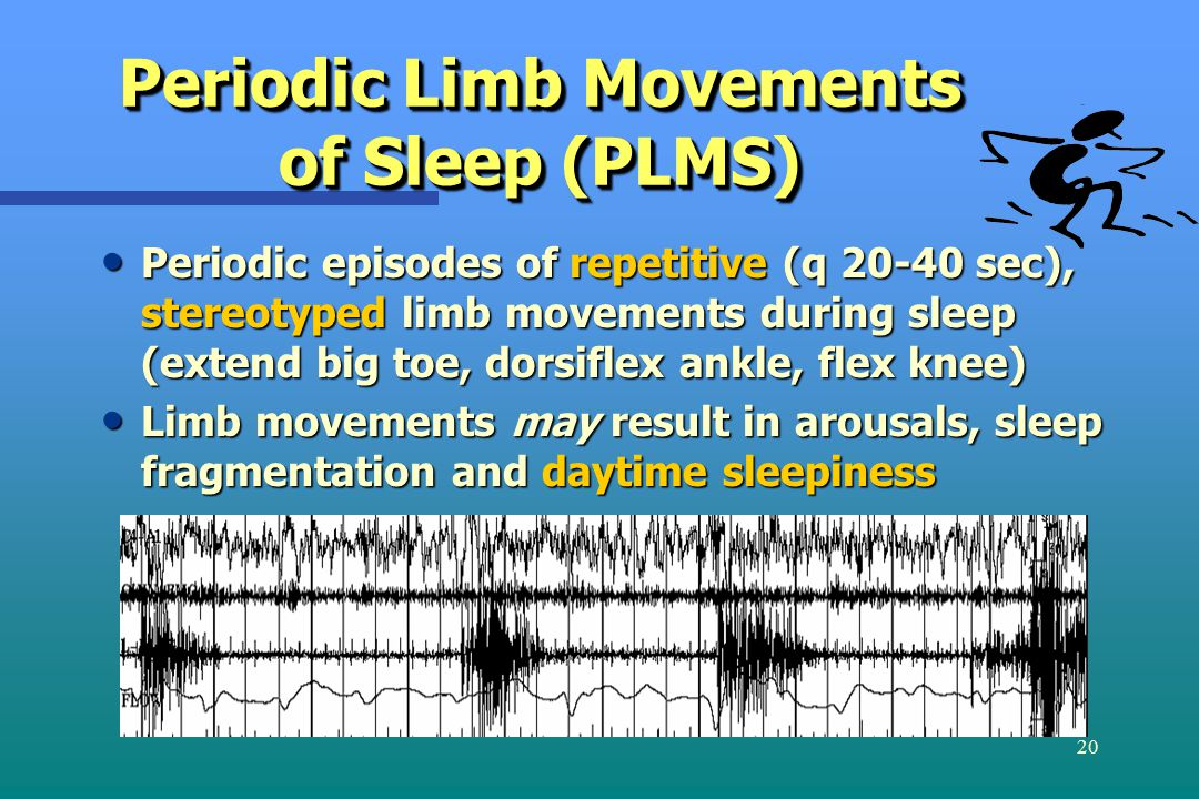 20 Periodic Limb Movements of Sleep (PLMS) Periodic episodes of repetitive (q 20-40 sec), stereotyped limb movements during sleep (extend big toe, dorsiflex ankle, flex knee) Periodic episodes of repetitive (q 20-40 sec), stereotyped limb movements during sleep (extend big toe, dorsiflex ankle, flex knee) Limb movements may result in arousals, sleep fragmentation and daytime sleepiness Limb movements may result in arousals, sleep fragmentation and daytime sleepiness