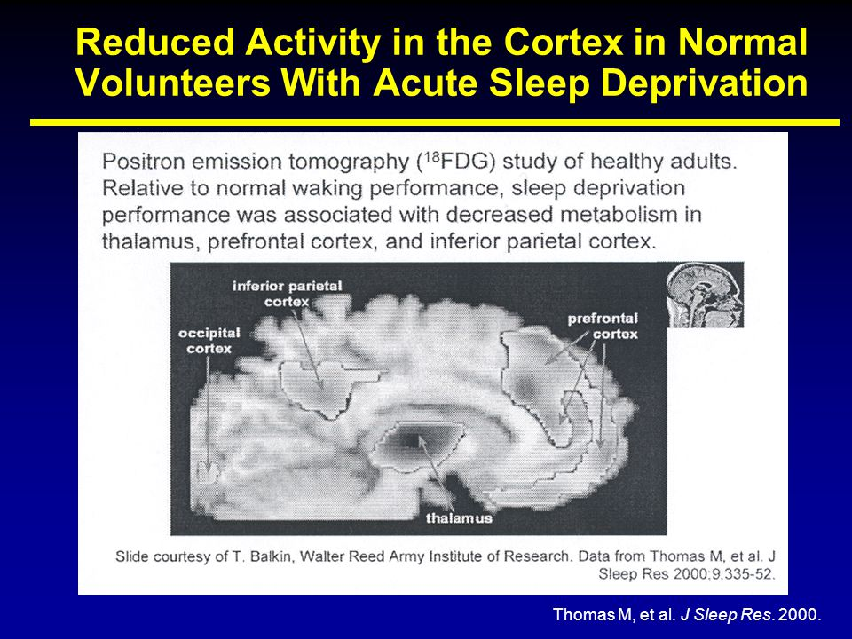Reduced Activity in the Cortex in Normal Volunteers With Acute Sleep Deprivation Thomas M, et al. J Sleep Res. 2000.