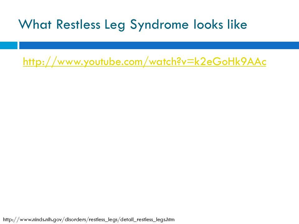 What Restless Leg Syndrome looks like http://www.youtube.com/watch?v=k2eGoHk9AAc http://www.ninds.nih.gov/disorders/restless_legs/detail_restless_legs