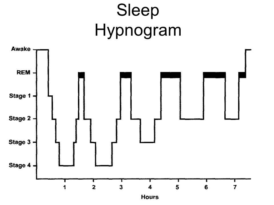 Sleep Hypnogram