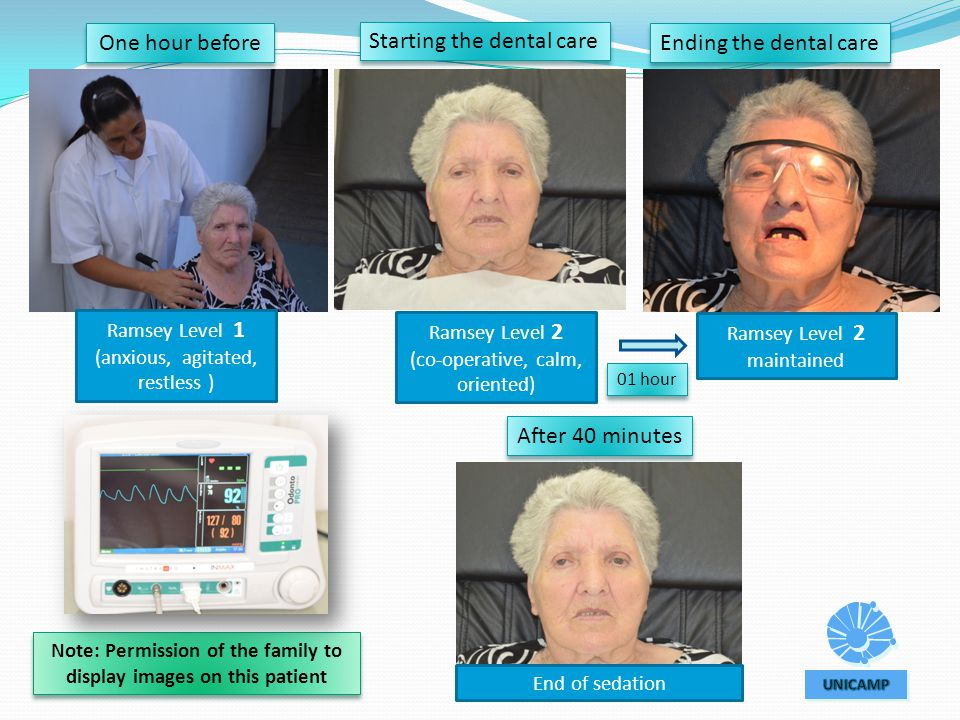 Note: Permission of the family to display images on this patient Starting the dental care Ending the dental care After 40 minutes Ramsey Level 1 (anxious, agitated, restless ) One hour before Ramsey Level 2 (co-operative, calm, oriented) Ramsey Level 2 maintained End of sedation 01 hour