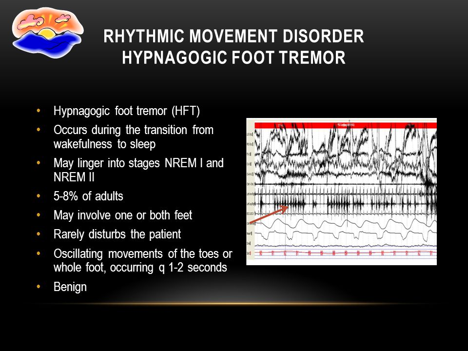 Hypnagogic foot tremor (HFT) Occurs during the transition from wakefulness to sleep May linger into stages NREM I and NREM II 5-8% of adults May invol