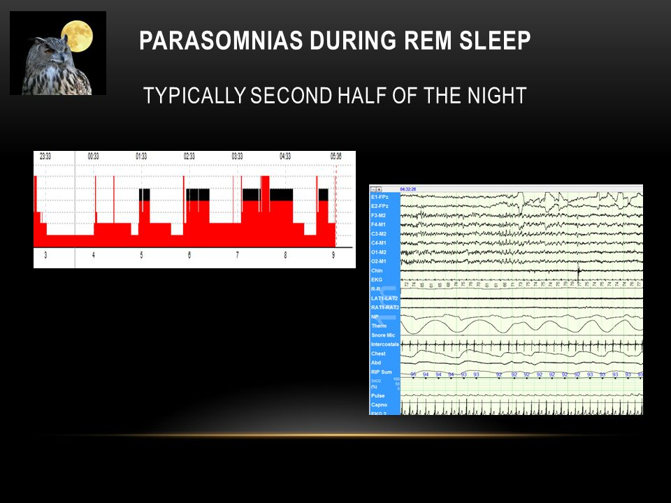 PARASOMNIAS DURING REM SLEEP TYPICALLY SECOND HALF OF THE NIGHT