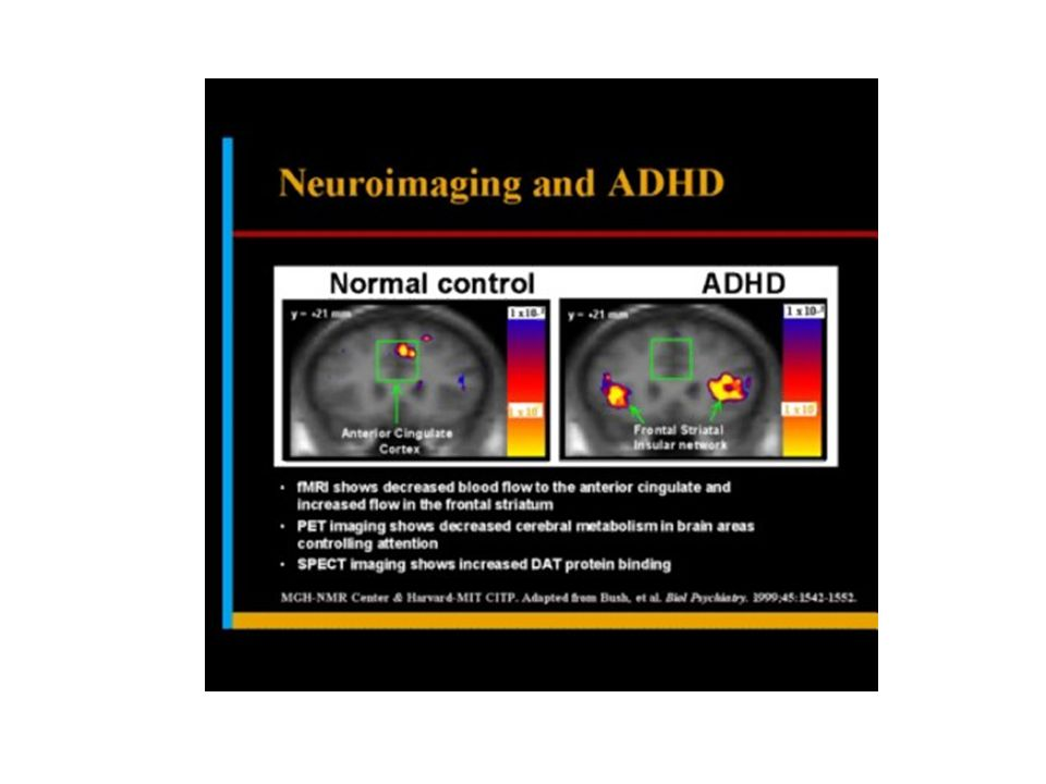 Conclusions Among patients with ADHD, rates of criminality were lower during periods when they were receiving ADHD medication.