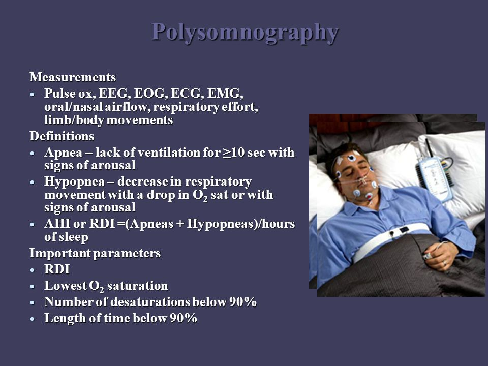 Polysomnography Measurements Pulse ox, EEG, EOG, ECG, EMG, oral/nasal airflow, respiratory effort, limb/body movements Pulse ox, EEG, EOG, ECG, EMG, oral/nasal airflow, respiratory effort, limb/body movementsDefinitions Apnea – lack of ventilation for ≥10 sec with signs of arousal Apnea – lack of ventilation for ≥10 sec with signs of arousal Hypopnea – decrease in respiratory movement with a drop in O 2 sat or with signs of arousal Hypopnea – decrease in respiratory movement with a drop in O 2 sat or with signs of arousal AHI or RDI =(Apneas + Hypopneas)/hours of sleep AHI or RDI =(Apneas + Hypopneas)/hours of sleep Important parameters RDI RDI Lowest O 2 saturation Lowest O 2 saturation Number of desaturations below 90% Number of desaturations below 90% Length of time below 90% Length of time below 90%