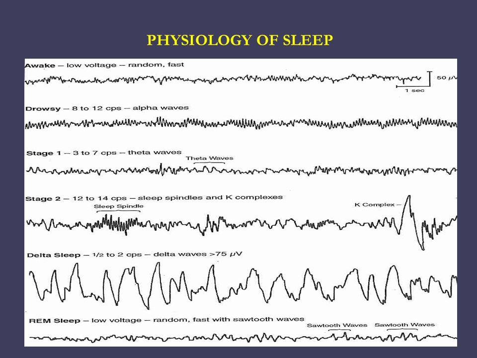 Polysomnography   Electroencephalogram (EEG).  Submental electromyogram (EMG).