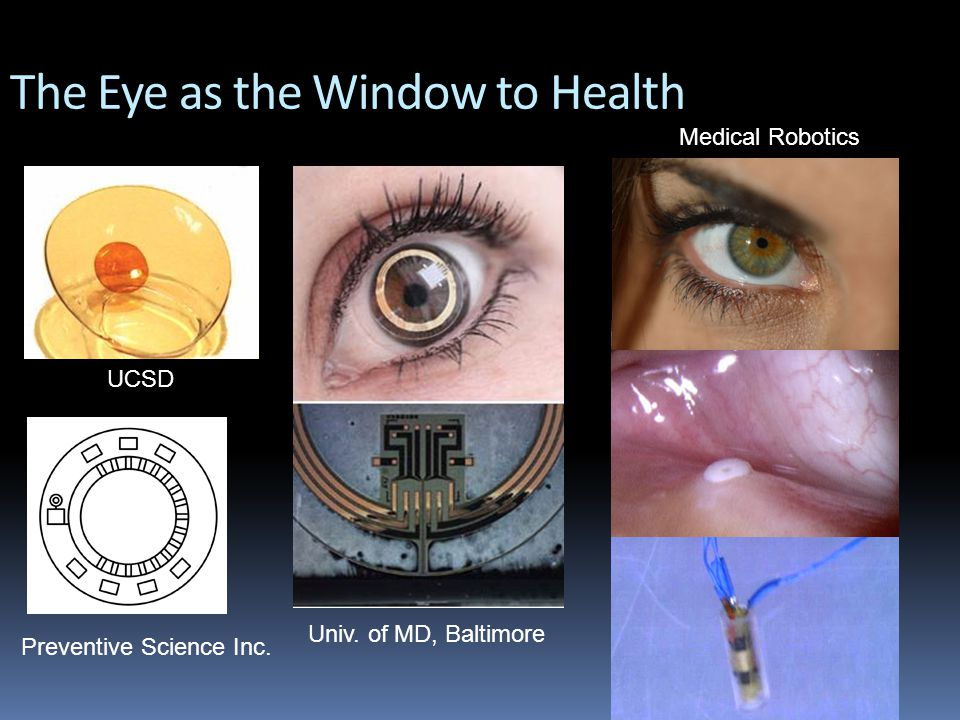 The Eye as the Window to Health Univ.