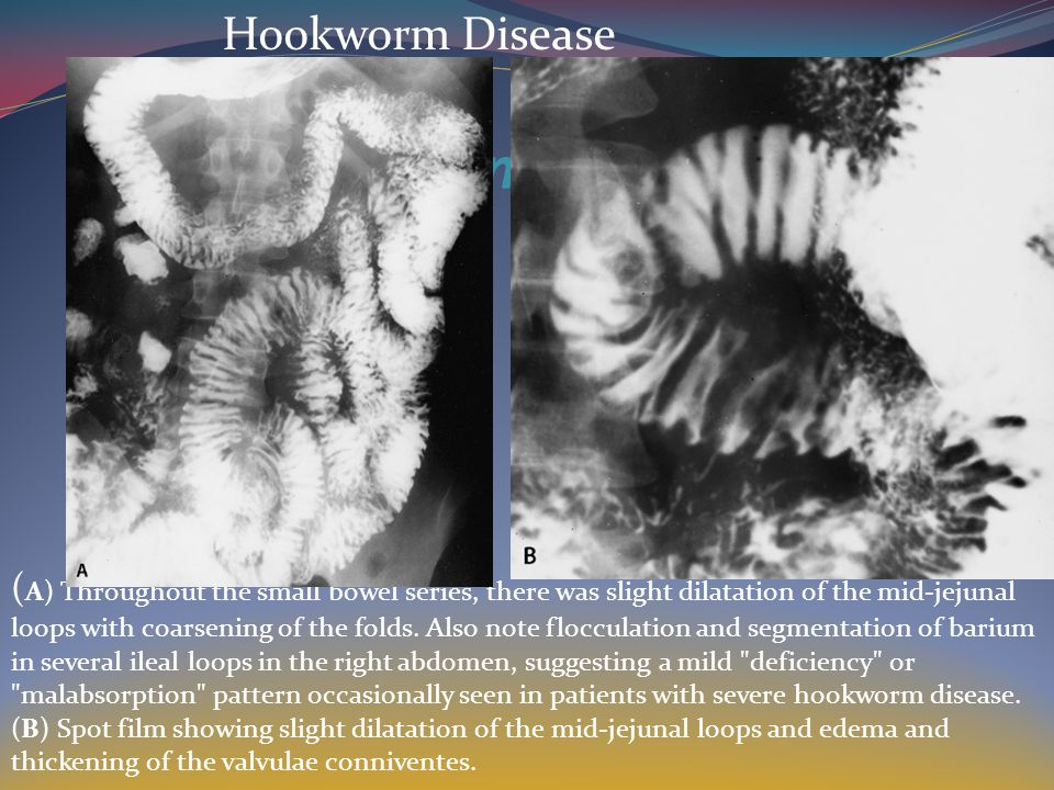 Hookworm Disease ( A) Throughout the small bowel series, there was slight dilatation of the mid-jejunal loops with coarsening of the folds.