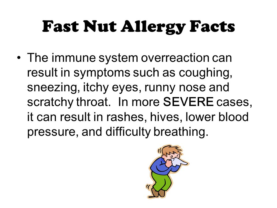 Fast Nut Allergy Facts The immune system overreaction can result in symptoms such as coughing, sneezing, itchy eyes, runny nose and scratchy throat.