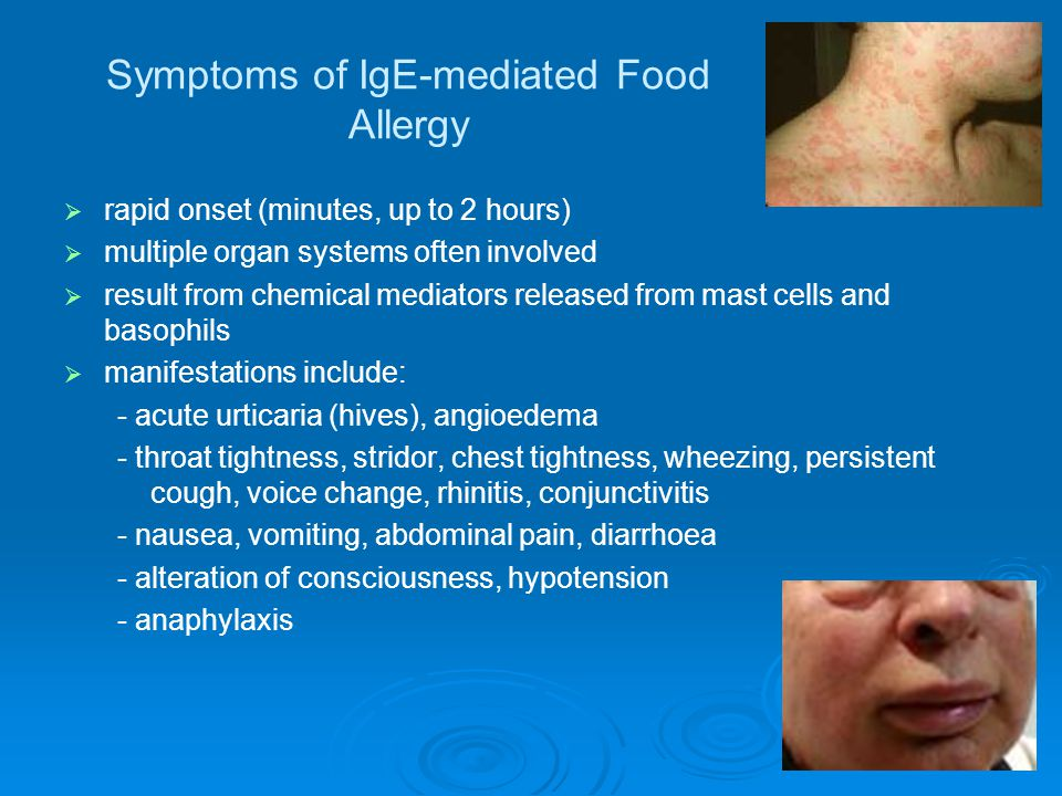 In summary   Food allergy affects 1-2% of the population   Fish, shellfish, peanuts and nuts are the main offenders   Food allergy is responsible for about 1/3 of anaphylaxis in Auckland   Most (but not all) food allergy develops in childhood   Food allergy strongly linked with early eczema   Allergen entry through the skin may be important   There is no evidence to advise maternal avoidance