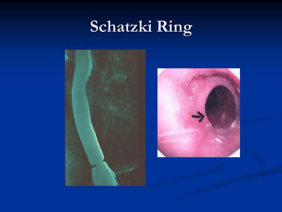 Schatzki Ring