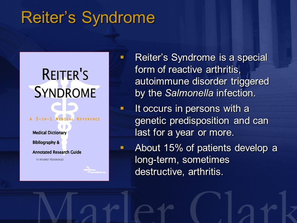 Reiter's Syndrome  Reiter's Syndrome is a special form of reactive arthritis, autoimmune disorder triggered by the Salmonella infection.