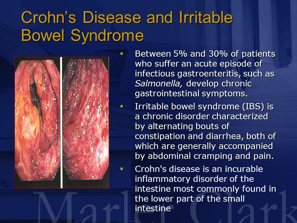 Crohn's Disease and Irritable Bowel Syndrome  Between 5% and 30% of patients who suffer an acute episode of infectious gastroenteritis, such as Salmonella, develop chronic gastrointestinal symptoms.