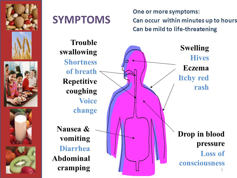 5 One or more symptoms: Can occur within minutes up to hours Can be mild to life-threatening Trouble swallowing Shortness of breath Repetitive coughing Voice change Nausea & vomiting Diarrhea Abdominal cramping Drop in blood pressure Loss of consciousness Swelling Hives Eczema Itchy red rash SYMPTOMS