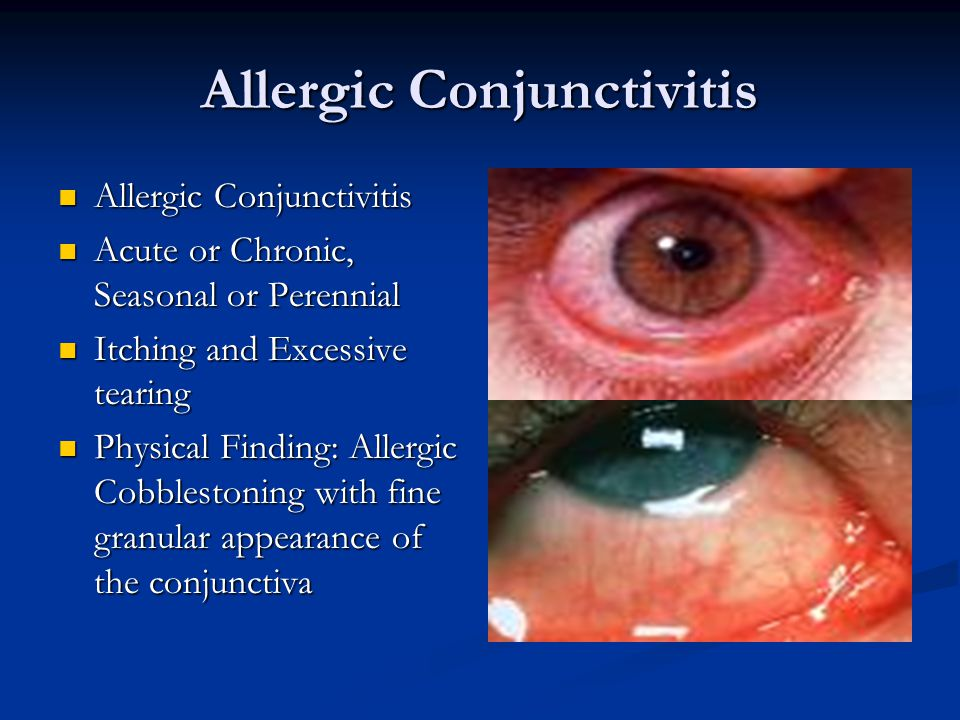 Allergic Conjunctivitis Allergic Conjunctivitis Allergic Conjunctivitis Acute or Chronic, Seasonal or Perennial Acute or Chronic, Seasonal or Perennial Itching and Excessive tearing Itching and Excessive tearing Physical Finding: Allergic Cobblestoning with fine granular appearance of the conjunctiva Physical Finding: Allergic Cobblestoning with fine granular appearance of the conjunctiva