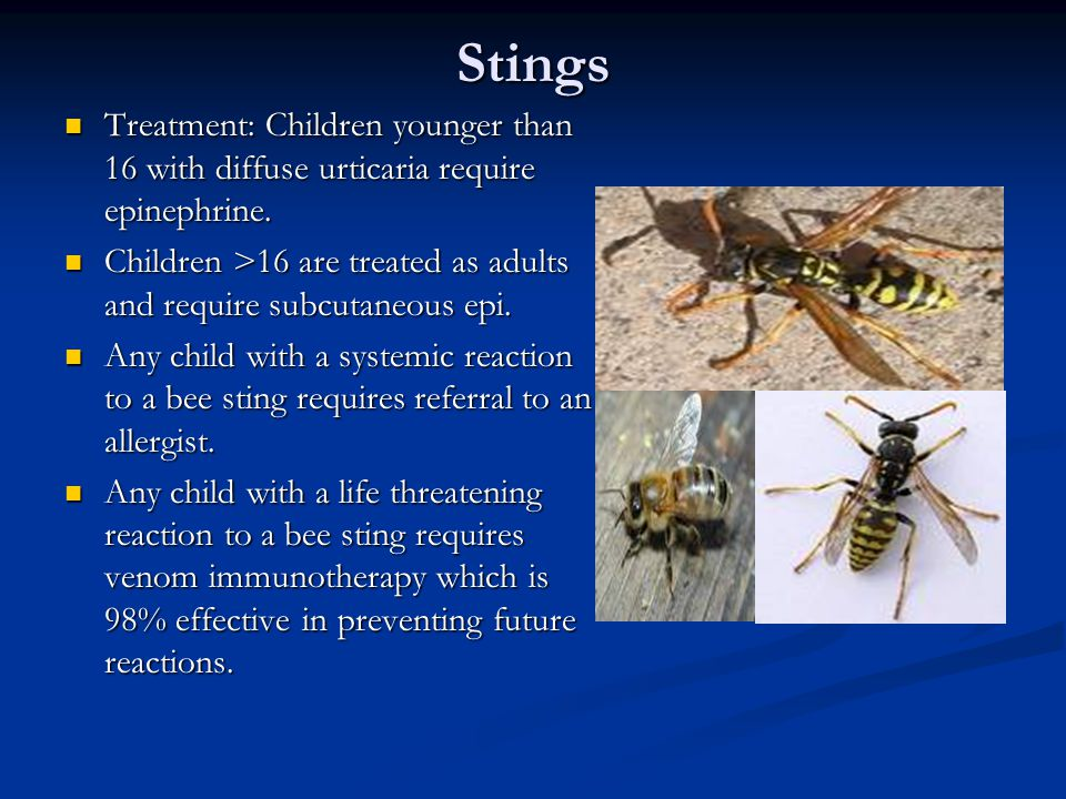 Stings Treatment: Children younger than 16 with diffuse urticaria require epinephrine. Treatment: Children younger than 16 with diffuse urticaria requ