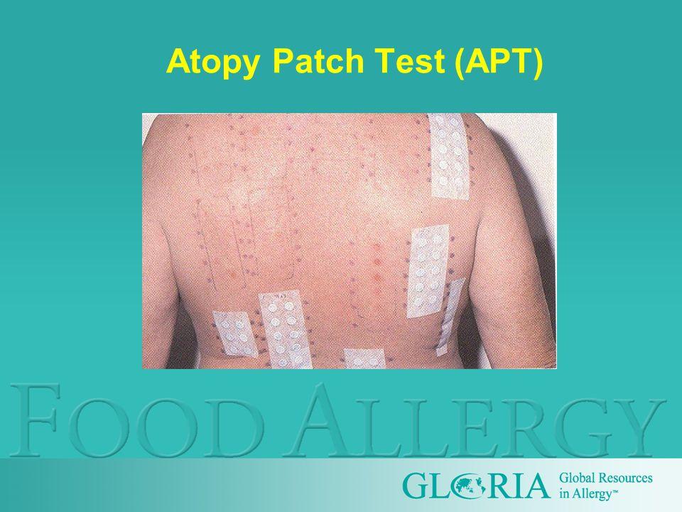 Atopy Patch Test (APT)