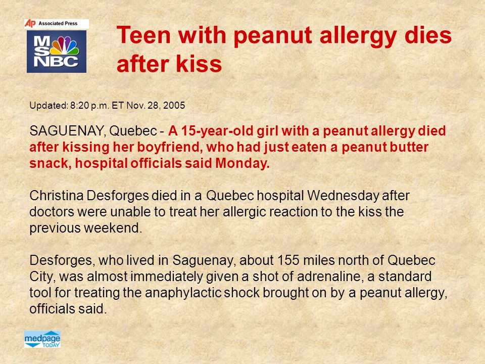 Teen with peanut allergy dies after kiss Updated: 8:20 p.m. ET Nov. 28, 2005 SAGUENAY, Quebec - A 15-year-old girl with a peanut allergy died after ki