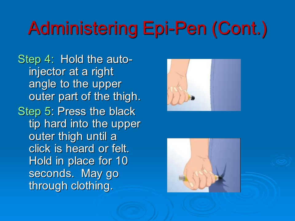 Administering Epi-Pen (Cont.) Step 4: Hold the auto- injector at a right angle to the upper outer part of the thigh.