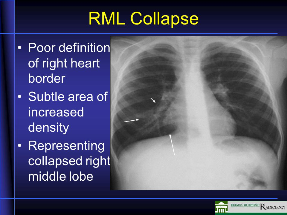 RML Collapse Poor definition of right heart border Subtle area of increased density Representing collapsed right middle lobe