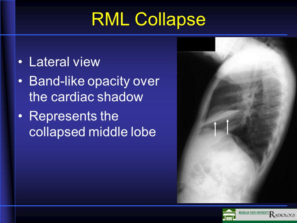 RML Collapse Lateral view Band-like opacity over the cardiac shadow Represents the collapsed middle lobe