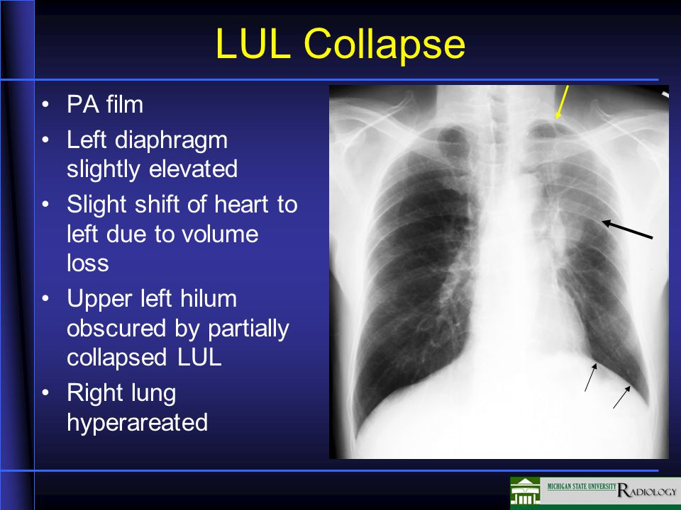LUL Collapse PA film Left diaphragm slightly elevated Slight shift of heart to left due to volume loss Upper left hilum obscured by partially collapse