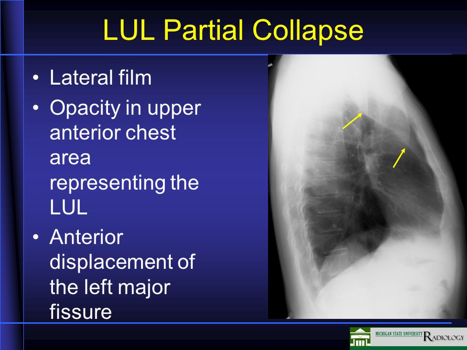 LUL Partial Collapse Lateral film Opacity in upper anterior chest area representing the LUL Anterior displacement of the left major fissure