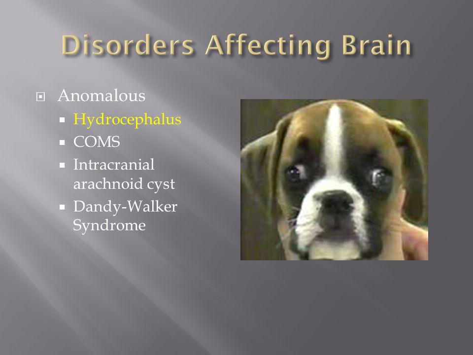  Anomalous  Hydrocephalus  COMS  Intracranial arachnoid cyst  Dandy-Walker Syndrome