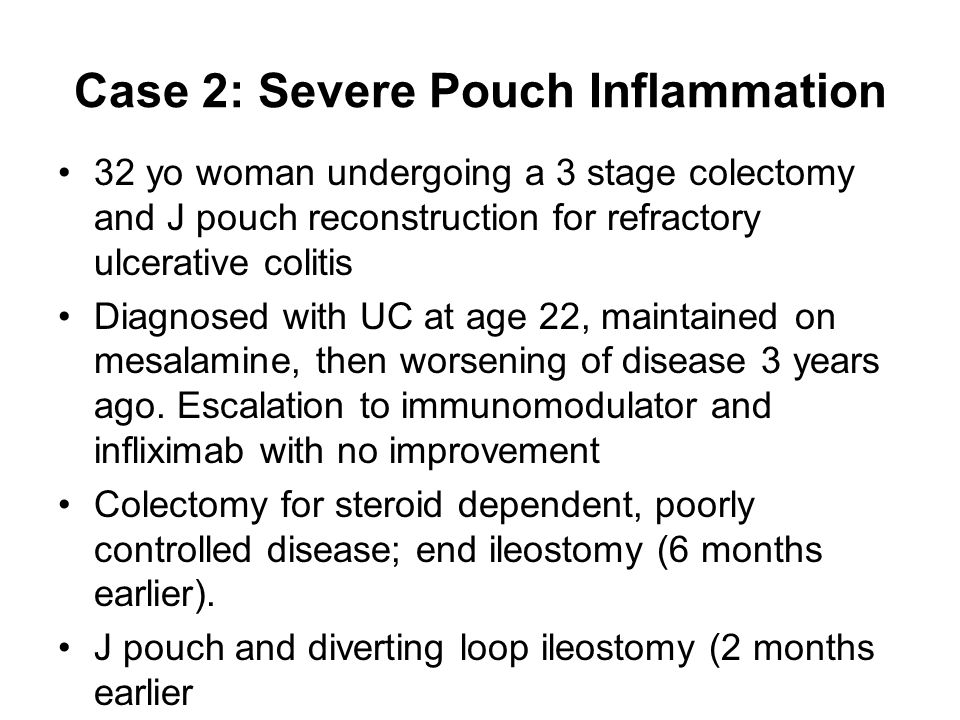 Case 2: Severe Pouch Inflammation 32 yo woman undergoing a 3 stage colectomy and J pouch reconstruction for refractory ulcerative colitis Diagnosed with UC at age 22, maintained on mesalamine, then worsening of disease 3 years ago.