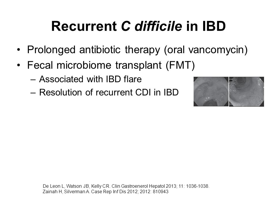 Recurrent C difficile in IBD Prolonged antibiotic therapy (oral vancomycin) Fecal microbiome transplant (FMT) –Associated with IBD flare –Resolution of recurrent CDI in IBD De Leon L, Watson JB, Kelly CR.