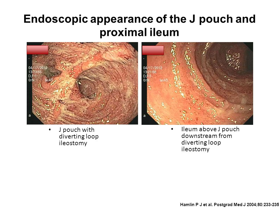 Endoscopic appearance of the J pouch and proximal ileum Hamlin P J et al.