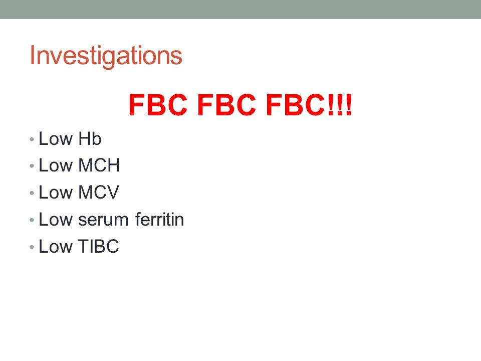 Investigations FBC FBC FBC!!! Low Hb Low MCH Low MCV Low serum ferritin Low TIBC