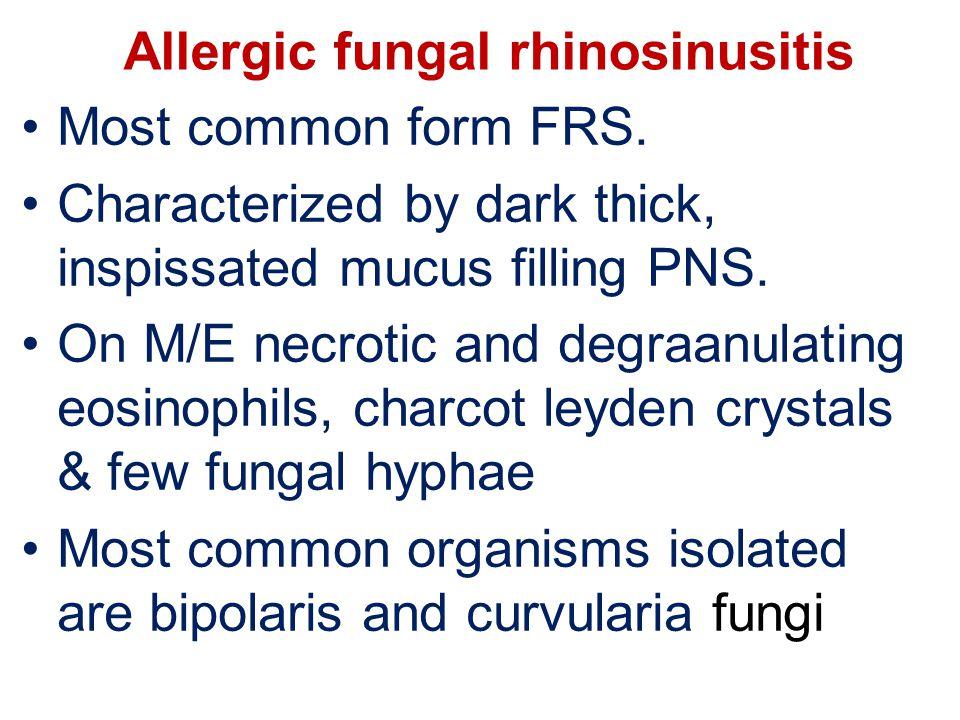 Allergic fungal rhinosinusitis Most common form FRS.